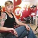 Eliminacion de Tatuajes