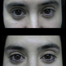 Maquillaje Semipermanente Ojos  Linea Inferior